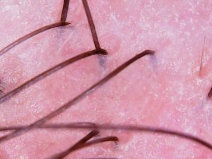 Microscopic pic of scalp after exfoliation